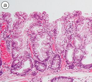 sessile serrated adenoma/polyp a