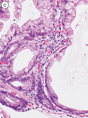 sessile serrated adenoma/polyp c